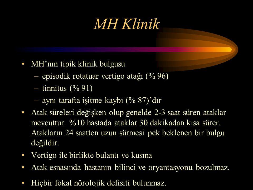 MH Klinik MH'nın tipik klinik bulgusu –episodik rotatuar vertigo atağı (% 96) –tinnitus (% 91) –aynı tarafta işitme kaybı (% 87)'dır Atak süreleri değ
