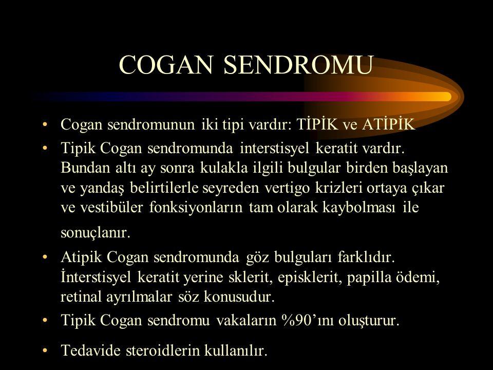 COGAN SENDROMU Cogan sendromunun iki tipi vardır: TİPİK ve ATİPİK Tipik Cogan sendromunda interstisyel keratit vardır. Bundan altı ay sonra kulakla il