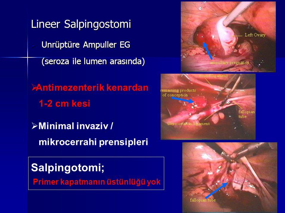 Lineer Salpingostomi  Unrüptüre Ampuller EG (seroza ile lumen arasında) Salpingotomi; Primer kapatmanın üstünlüğü yok  Antimezenterik kenardan 1-2 cm kesi  Minimal invaziv / mikrocerrahi prensipleri