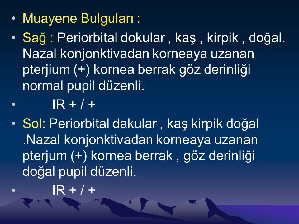Muayene Bulguları : Sağ : Periorbital dokular, kaş, kirpik, doğal.