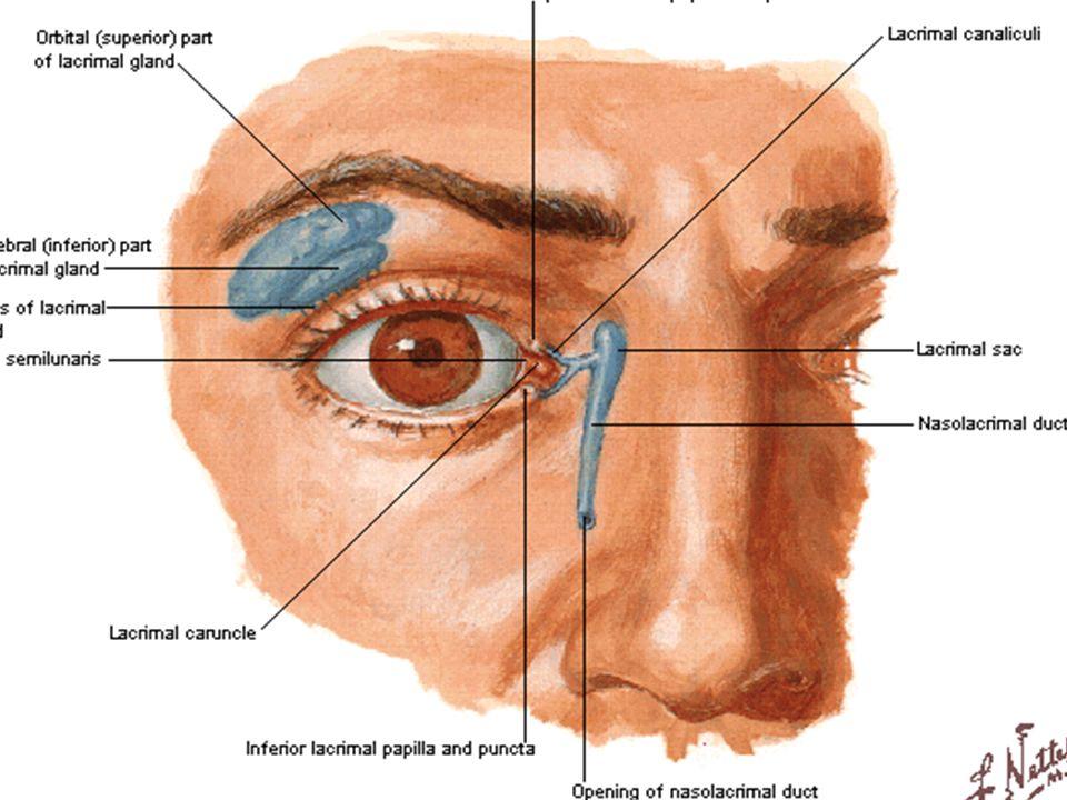 KRONİK DAKRİOSİSTİT NLK nın çeşitli nedenlerle tıkanması sonucu gelişen kesenin ağrısız enfeksiyonudur.