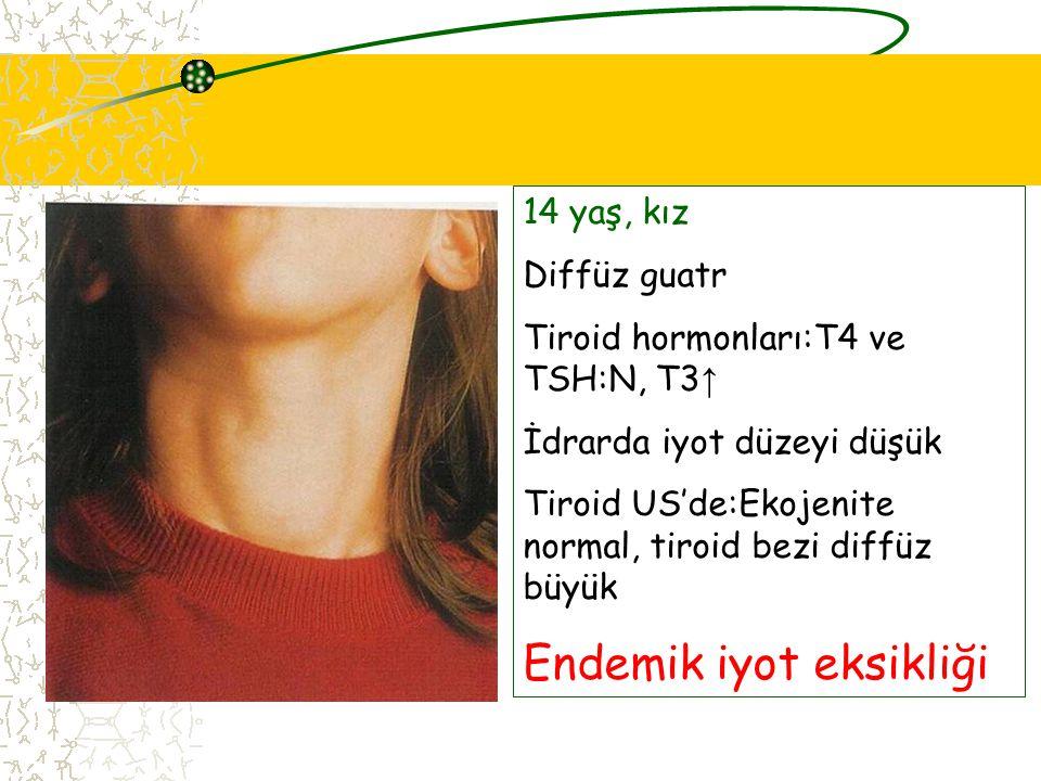 14 yaş, kız Diffüz guatr Tiroid hormonları:T4 ve TSH:N, T3 ↑ İdrarda iyot düzeyi düşük Tiroid US'de:Ekojenite normal, tiroid bezi diffüz büyük Endemik iyot eksikliği