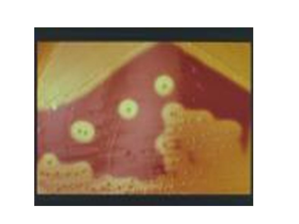 Sınıflandırılmaları Lancefield'a göre: Hücre duvarlarındaki polisakkaritler ve lipoteikoik asitlere göre sınıflandırma yapılır.