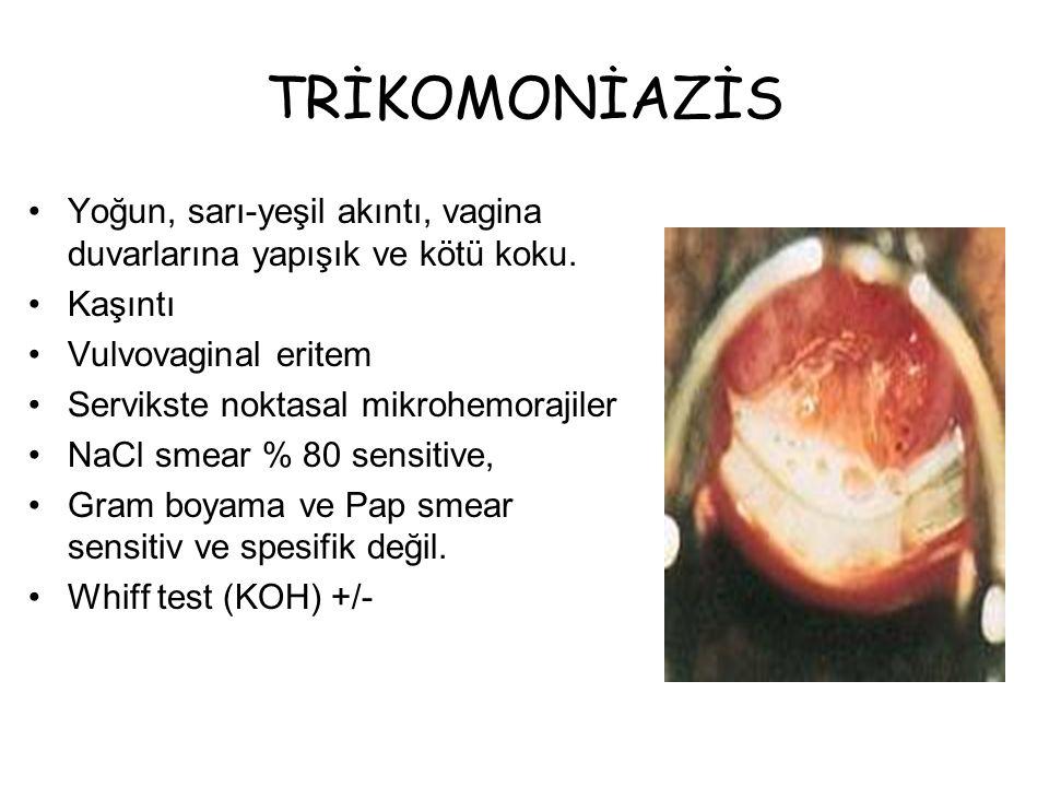 Önerilen Metronidazole 2 gm oral tek doz Alternatif Metronidazole 500 mg 2x1, 7 gün Gebelik Metronidazole 2 gm oral tek doz TRİKOMONİAZİS Tedavi  Metranidazol  Flagyl 500mg/ 20 tablet  Nidazol 500mg/ 20 tablet  Seknidazol  Flagentyl 500mg / 4 tablet  Ornidazol  Biteral 500 mg / 10 tablet  Ornisid forte 500 mg / 10 tablet