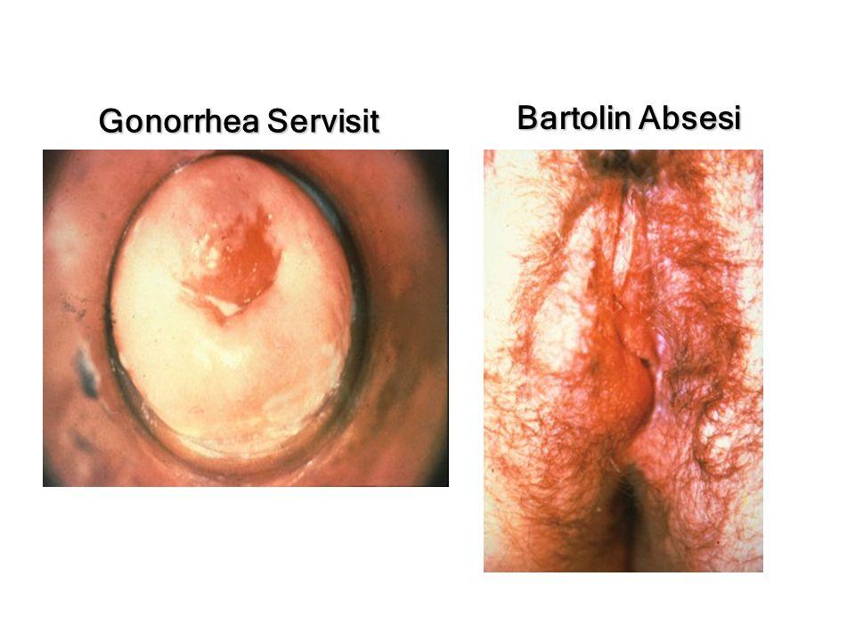 Neisseria gonorrhoeae Cefixime 400 mg Ceftriaxone 125 IM Ciprofloxacin 500 mg Ofloxacin 400 mg Levofloxacin 250 mg Birlikte Chlamydial tedavisi Eş Tedavi Edilmeli