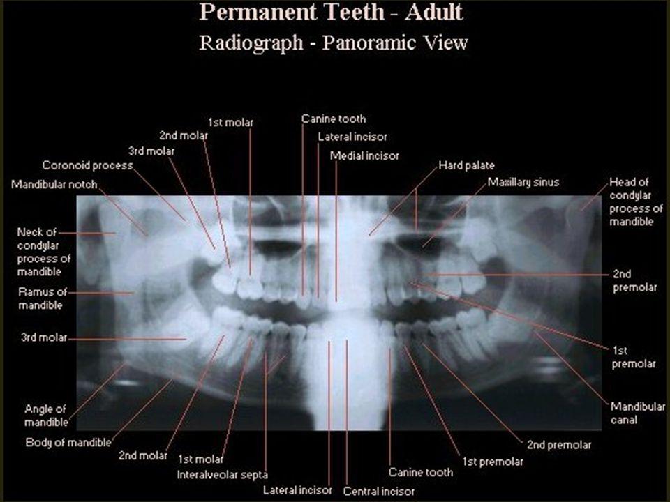 SELLA TURSİKA Sfenoid kemik korpusundadır Anterior ve posterior clinoidler Hipofiz fossası Dorsum sella İçerisinde hipofiz bezi bulunur
