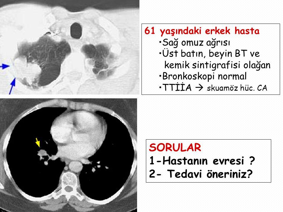 61 yaşındaki erkek hasta Sağ omuz ağrısı Üst batın, beyin BT ve kemik sintigrafisi olağan Bronkoskopi normal TTİİA  skuamöz hüc.