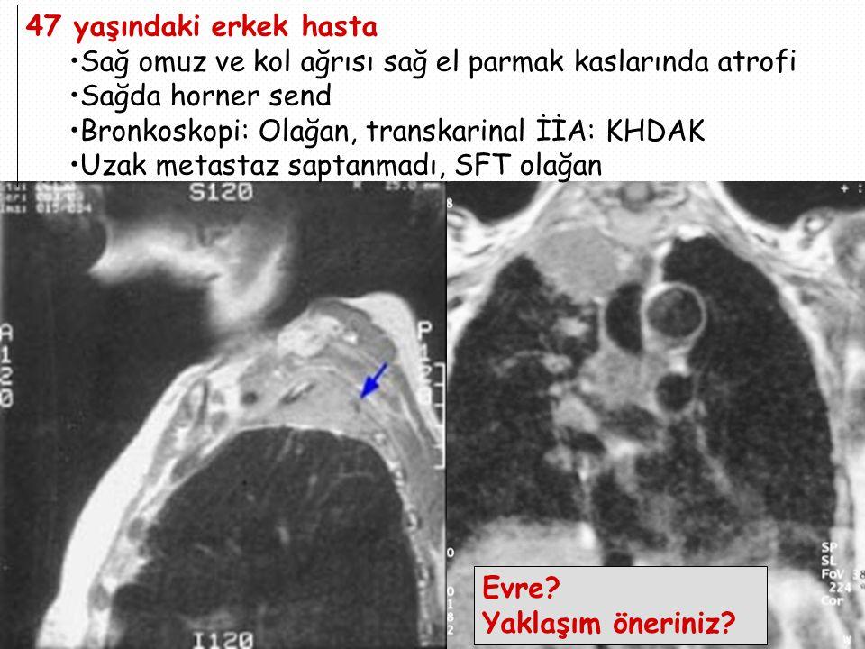 47 yaşındaki erkek hasta Sağ omuz ve kol ağrısı sağ el parmak kaslarında atrofi Sağda horner send Bronkoskopi: Olağan, transkarinal İİA: KHDAK Uzak metastaz saptanmadı, SFT olağan Evre.