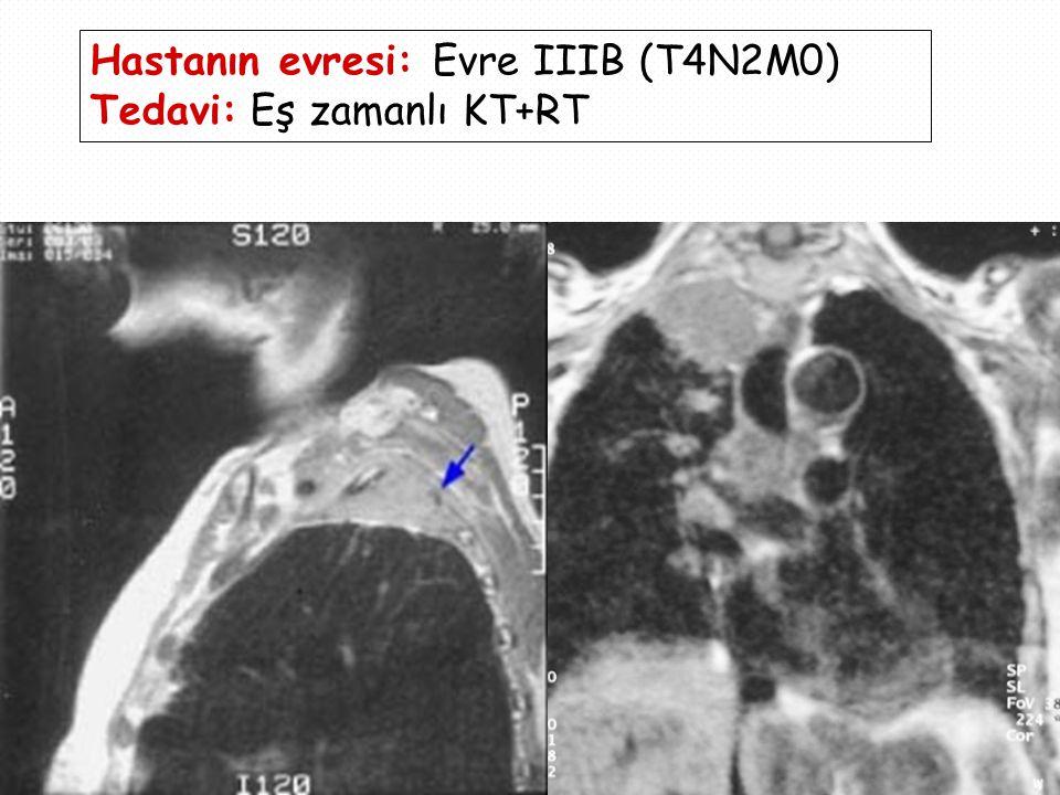 Hastanın evresi: Evre IIIB (T4N2M0) Tedavi: Eş zamanlı KT+RT