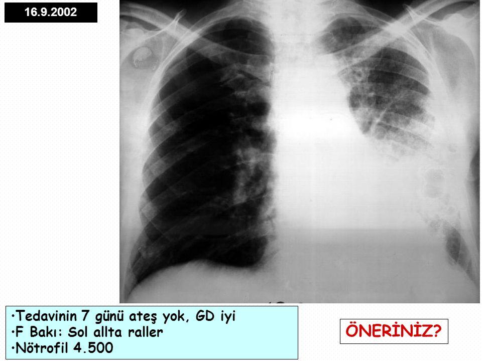 16.9.2002 Tedavinin 7 günü ateş yok, GD iyi F Bakı: Sol allta raller Nötrofil 4.500 ÖNERİNİZ?