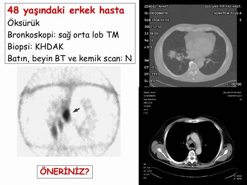 48 yaşındaki erkek hasta Öksürük Bronkoskopi: sağ orta lob TM Biopsi: KHDAK Batın, beyin BT ve kemik scan: N ÖNERİNİZ?