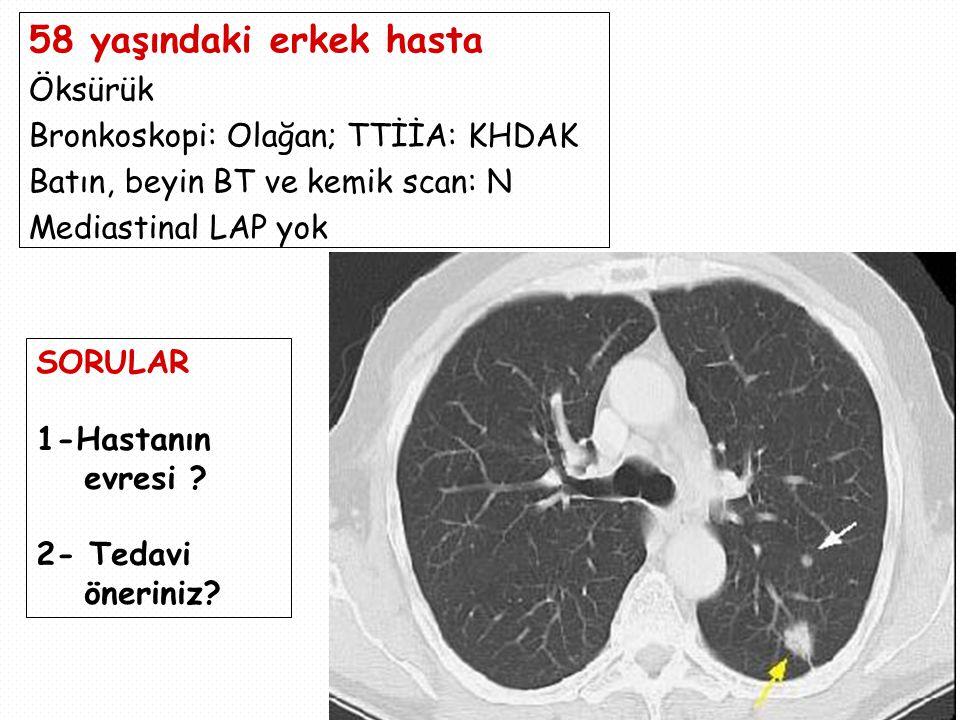 58 yaşındaki erkek hasta Öksürük Bronkoskopi: Olağan; TTİİA: KHDAK Batın, beyin BT ve kemik scan: N Mediastinal LAP yok SORULAR 1-Hastanın evresi .
