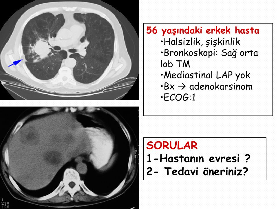 56 yaşındaki erkek hasta Halsizlik, şişkinlik Bronkoskopi: Sağ orta lob TM Mediastinal LAP yok Bx  adenokarsinom ECOG:1 SORULAR 1-Hastanın evresi .