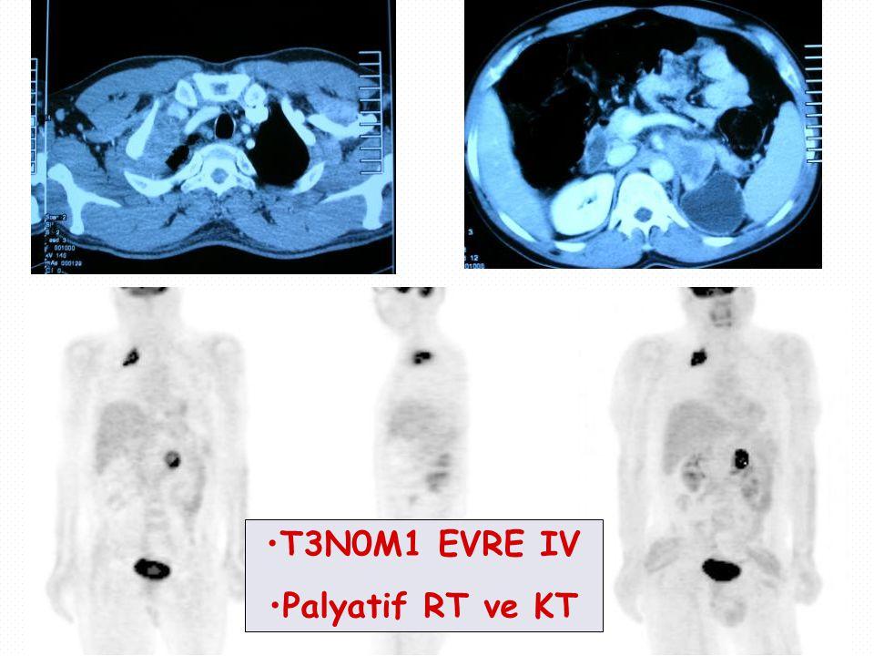 T3N0M1 EVRE IV Palyatif RT ve KT