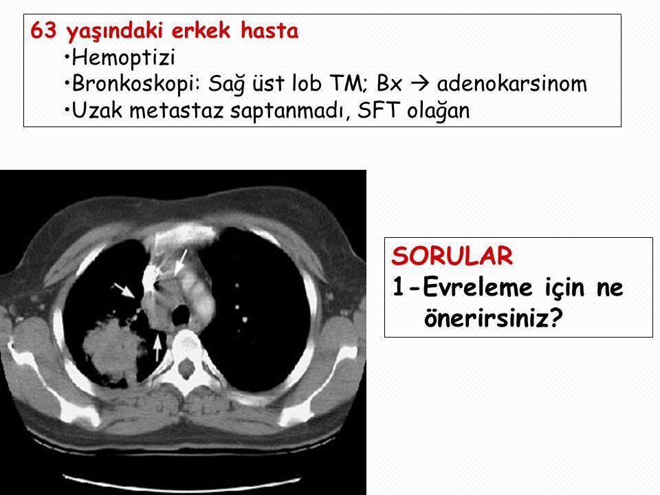 63 yaşındaki erkek hasta Hemoptizi Bronkoskopi: Sağ üst lob TM; Bx  adenokarsinom Uzak metastaz saptanmadı, SFT olağan SORULAR 1-Evreleme için ne önerirsiniz?