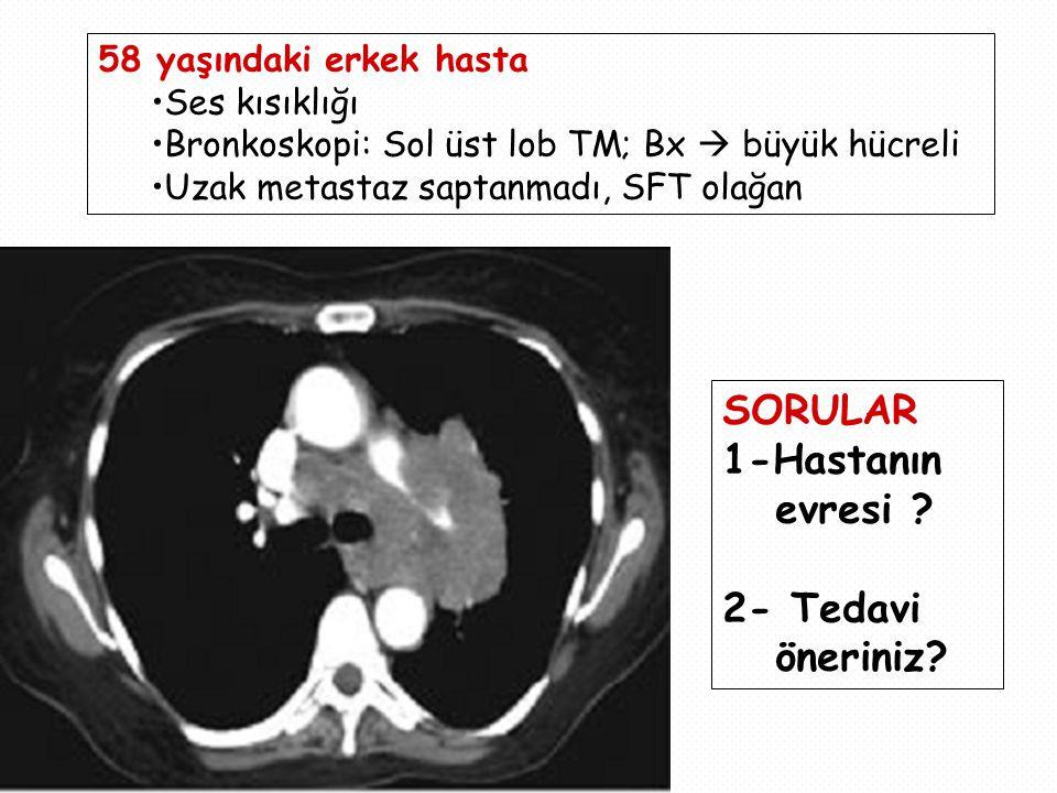 58 yaşındaki erkek hasta Ses kısıklığı Bronkoskopi: Sol üst lob TM; Bx  büyük hücreli Uzak metastaz saptanmadı, SFT olağan SORULAR 1-Hastanın evresi .