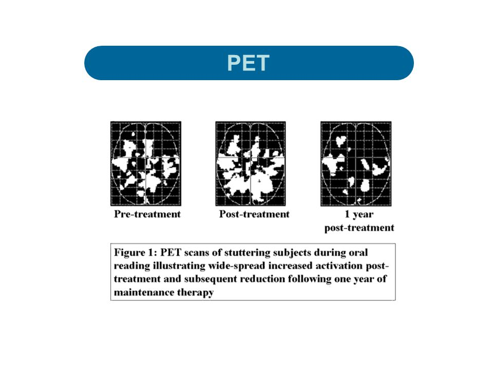 Sağ hemisfer hiperaktivayonu son zamanlarda fMRI çalışmalarında da gösterilmiştir ( Neumann ve ark.