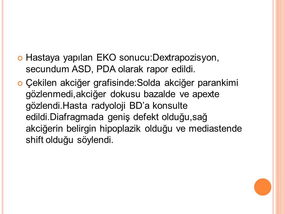 Hastaya yapılan EKO sonucu:Dextrapozisyon, secundum ASD, PDA olarak rapor edildi.
