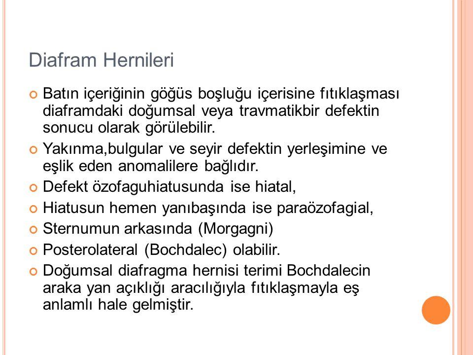 Diafram Hernileri Batın içeriğinin göğüs boşluğu içerisine fıtıklaşması diaframdaki doğumsal veya travmatikbir defektin sonucu olarak görülebilir.