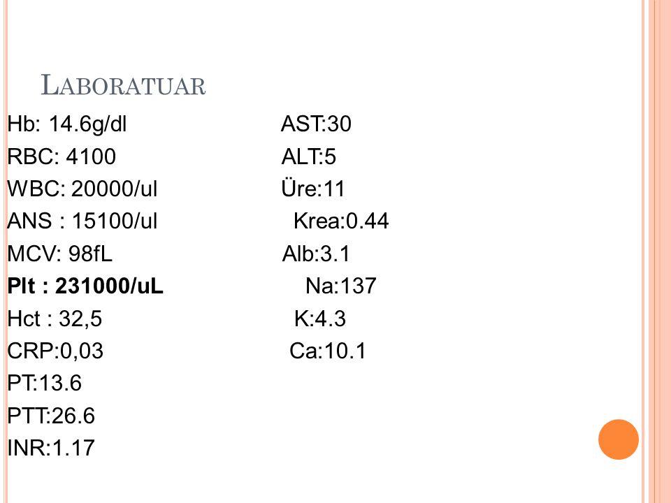 L ABORATUAR Hb: 14.6g/dl AST:30 RBC: 4100 ALT:5 WBC: 20000/ul Üre:11 ANS : 15100/ul Krea:0.44 MCV: 98fL Alb:3.1 Plt : 231000/uL Na:137 Hct : 32,5 K:4.3 CRP:0,03 Ca:10.1 PT:13.6 PTT:26.6 INR:1.17