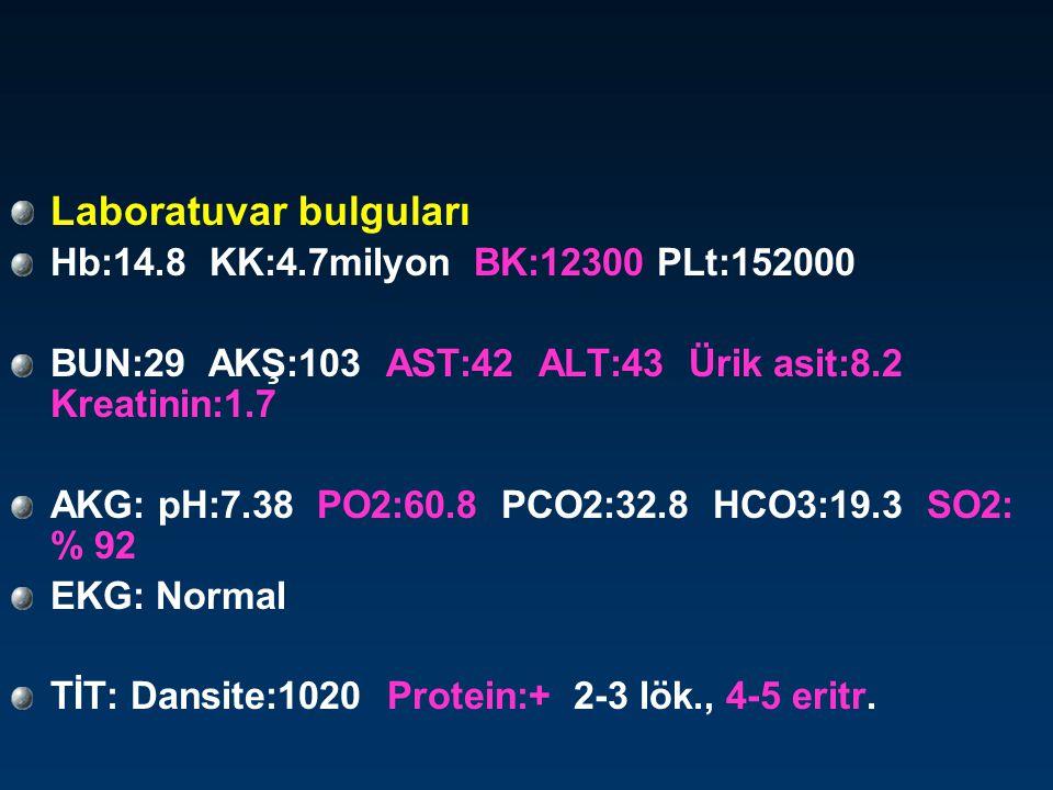Ön tanınız nedir ? 1) Akciğer malignitesi 2) PNX 3) Pulmoner emboli 4) Pnomoni 5) Nefropati