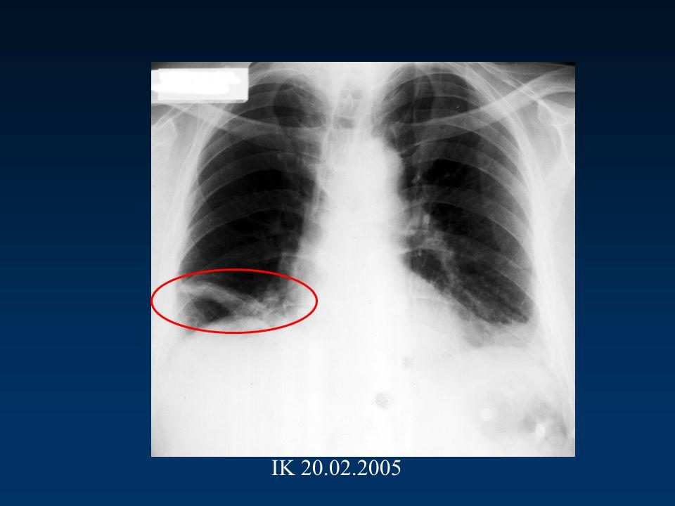 Bu akciğer grafisine göre ne düşünürsünüz ? 1) Pnomoni 2) Pulmoner emboli