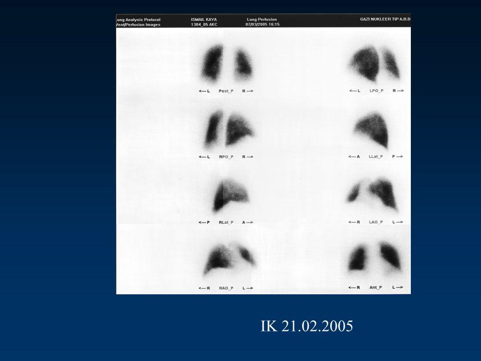 Q sintigrafisi Sağ akciğer Üst lob apikal ve posterior Orta lob lateral Alt lob posterior ve anterior'da subsegmenter, lateralde kama şeklinde segmenter Sol akciğer Alt lob anteromedial'de subsegmenter HİPOPERFÜZYON saptandı