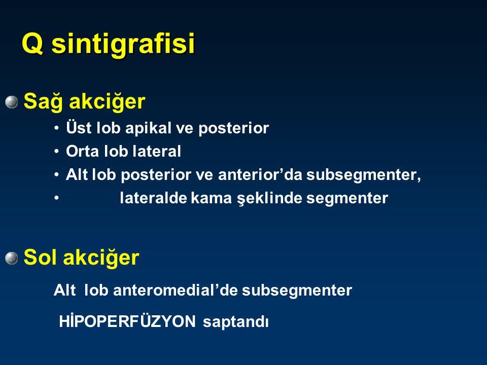 Q sintigrafisinin spesifisitesini artırmak için V sintigrafisi ister misiniz ? 1) Evet 2) Hayır