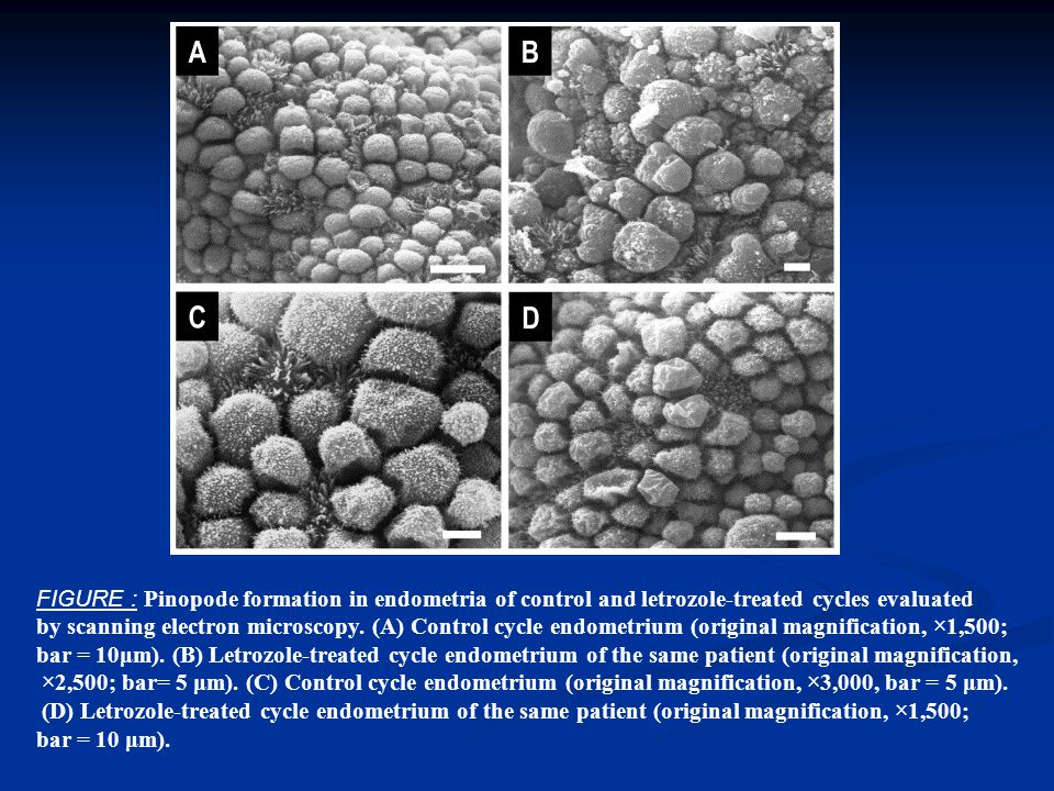 FIGURE : Pinopode formation in endometria of control and letrozole-treated cycles evaluated by scanning electron microscopy.
