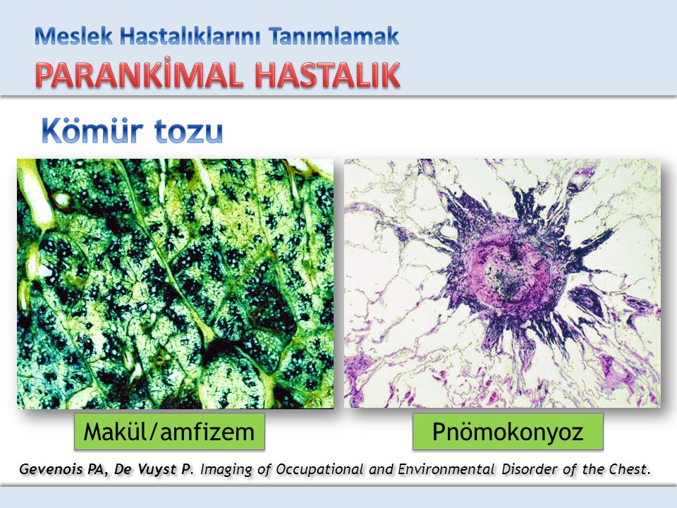 Gevenois PA, De Vuyst P. Imaging of Occupational and Environmental Disorder of the Chest. Makül/amfizem Pnömokonyoz