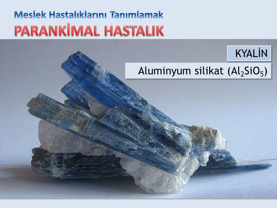 KYALİN Aluminyum silikat (Al 2 SiO 5 )