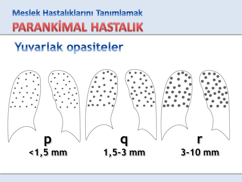 p <1,5 mm p <1,5 mm q 1,5-3 mm q 1,5-3 mm r 3-10 mm r 3-10 mm