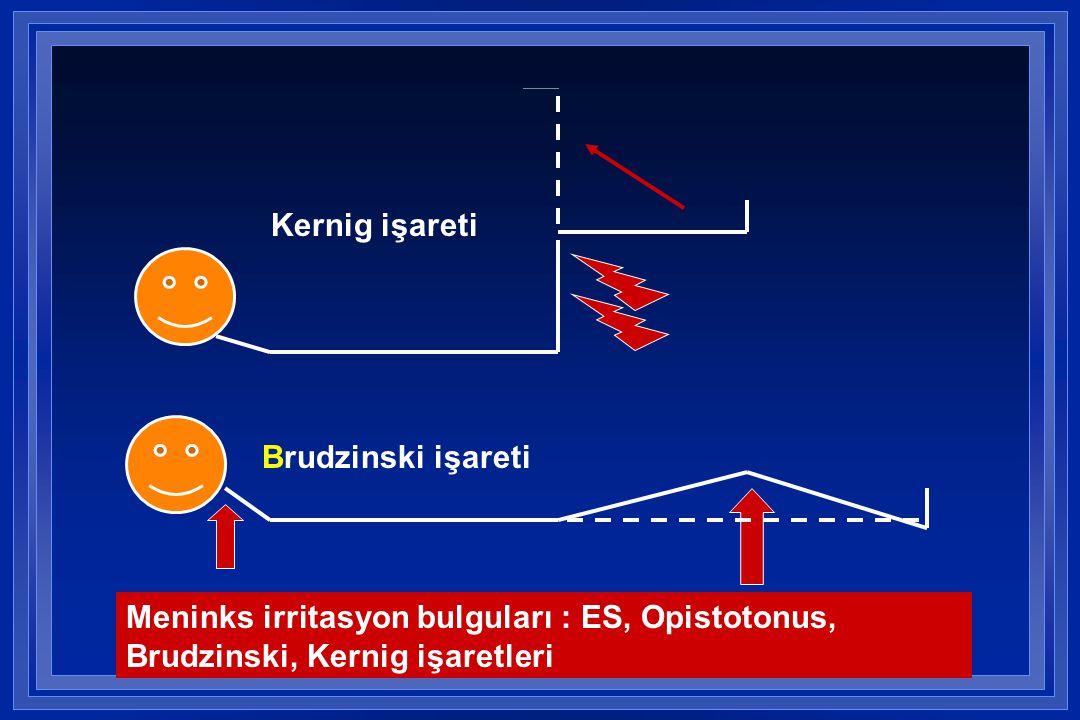 Kernig işareti Brudzinski işareti Meninks irritasyon bulguları : ES, Opistotonus, Brudzinski, Kernig işaretleri