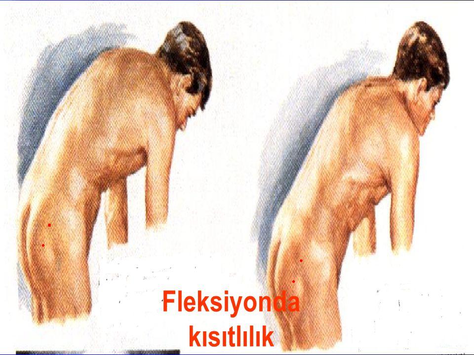 Lateral fleksiyonda kısıtlılık