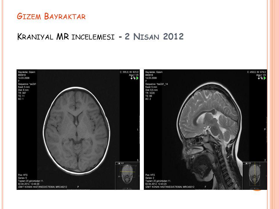 G IZEM B AYRAKTAR K RANIYAL MR INCELEMESI - 2 N ISAN 2012