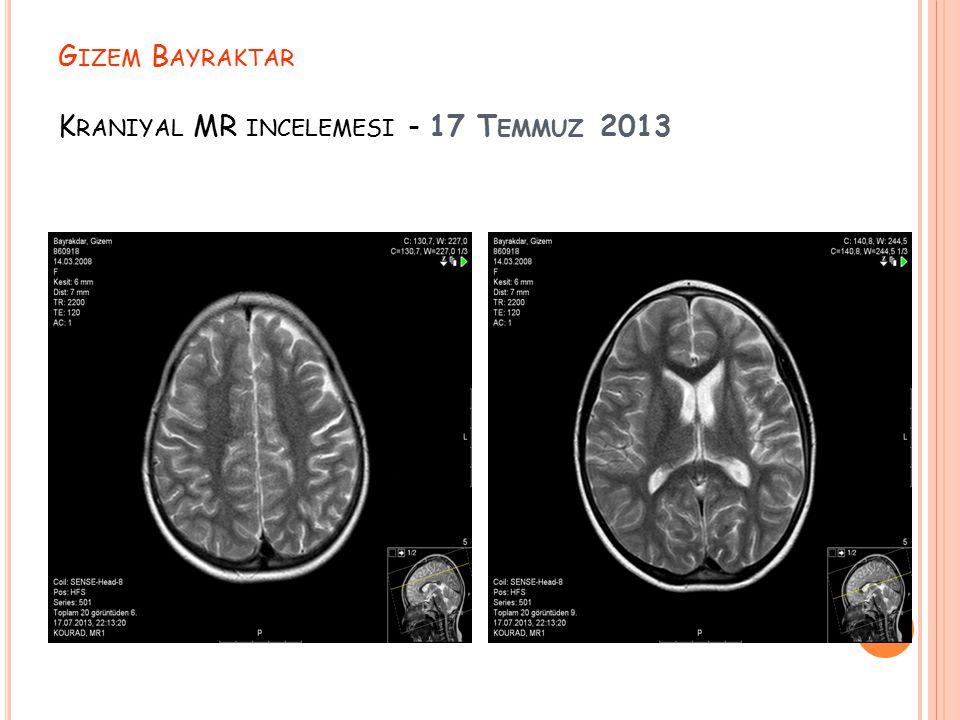 G IZEM B AYRAKTAR K RANIYAL MR INCELEMESI - 17 T EMMUZ 2013