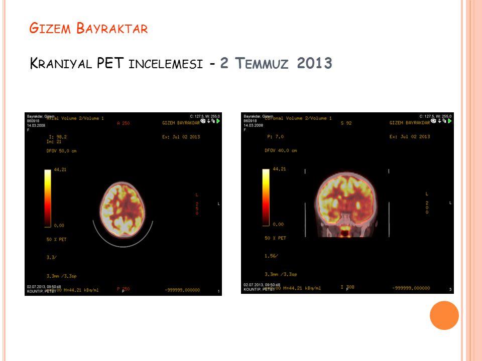 G IZEM B AYRAKTAR K RANIYAL PET INCELEMESI - 2 T EMMUZ 2013