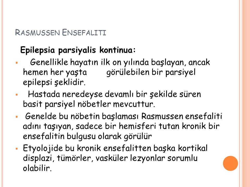 R ASMUSSEN E NSEFALITI Epilepsia parsiyalis kontinua:  Genellikle hayatın ilk on yılında başlayan, ancak hemen her yaşta görülebilen bir parsiyel epi