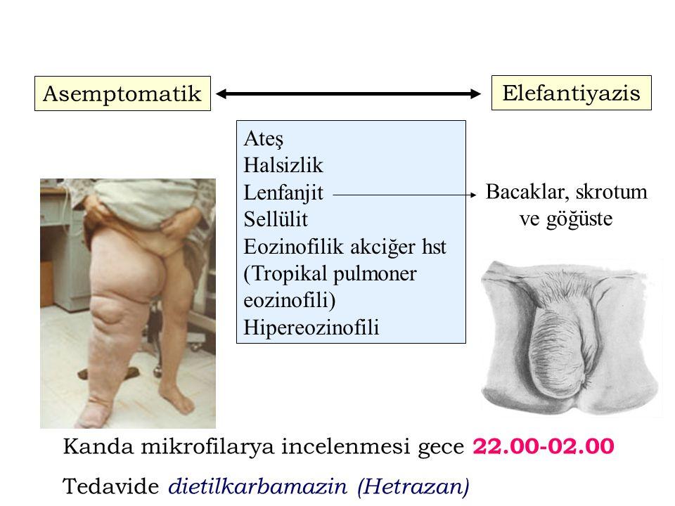 Asemptomatik Elefantiyazis Ateş Halsizlik Lenfanjit Sellülit Eozinofilik akciğer hst (Tropikal pulmoner eozinofili) Hipereozinofili Bacaklar, skrotum