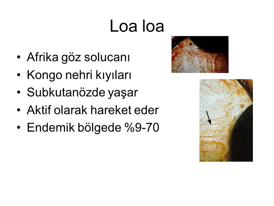 Loa loa Afrika göz solucanı Kongo nehri kıyıları Subkutanözde yaşar Aktif olarak hareket eder Endemik bölgede %9-70