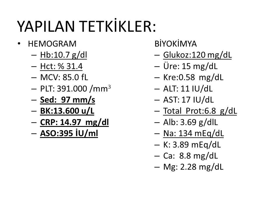 YAPILAN TETKİKLER: HEMOGRAM – Hb:10.7 g/dl – Hct: % 31.4 – MCV: 85.0 fL – PLT: 391.000 /mm 3 – Sed: 97 mm/s – BK:13.600 u/L – CRP: 14.97 mg/dl – ASO:395 İU/ml BİYOKİMYA – Glukoz:120 mg/dL – Üre: 15 mg/dL – Kre:0.58 mg/dL – ALT: 11 IU/dL – AST: 17 IU/dL – Total Prot:6.8 g/dL – Alb: 3.69 g/dlL – Na: 134 mEq/dL – K: 3.89 mEq/dL – Ca: 8.8 mg/dL – Mg: 2.28 mg/dL
