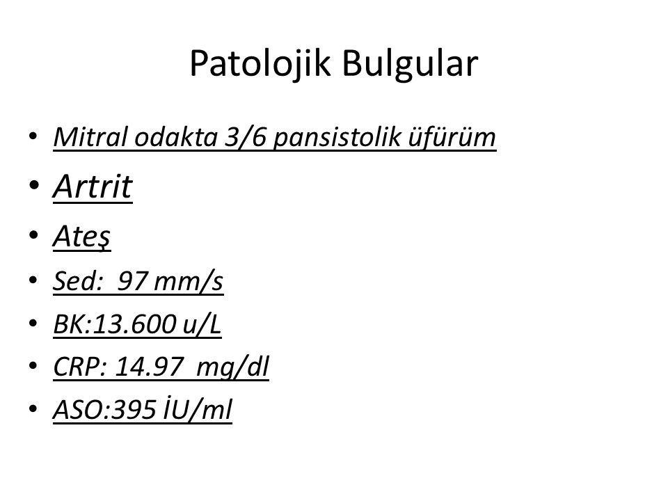 Patolojik Bulgular Mitral odakta 3/6 pansistolik üfürüm Artrit Ateş Sed: 97 mm/s BK:13.600 u/L CRP: 14.97 mg/dl ASO:395 İU/ml