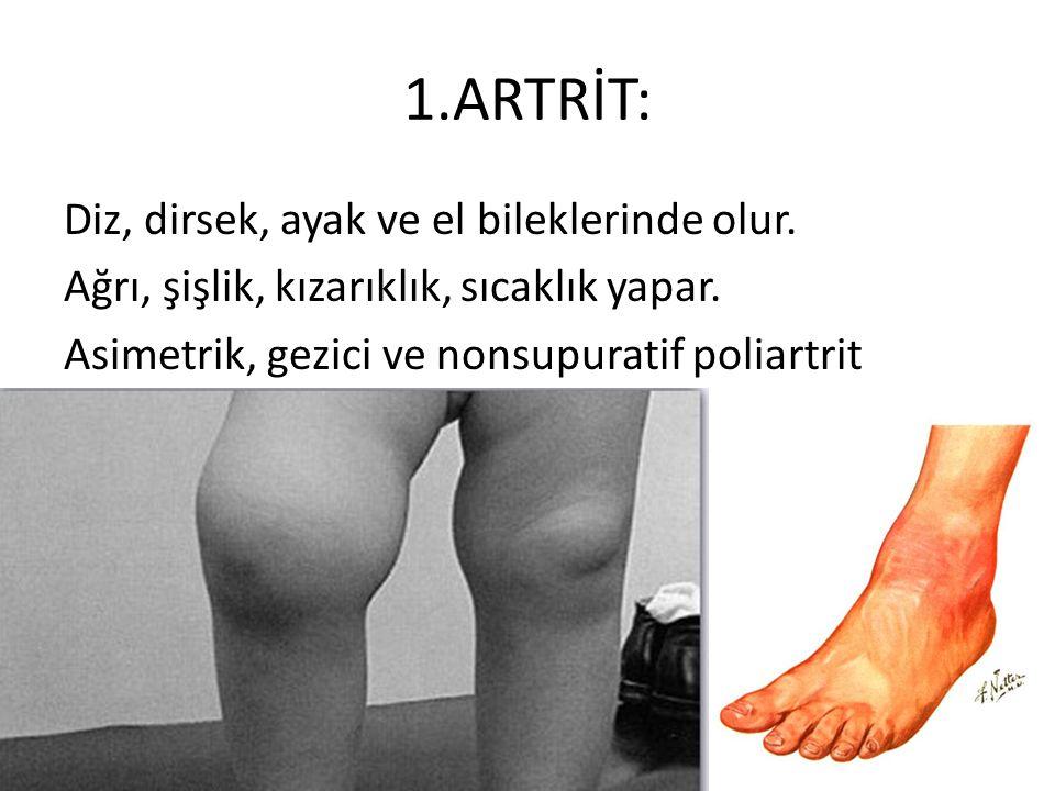 1.ARTRİT: Diz, dirsek, ayak ve el bileklerinde olur.