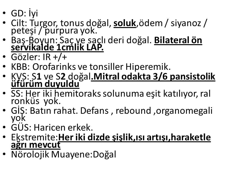 GD: İyi Cilt: Turgor, tonus doğal, soluk,ödem / siyanoz / peteşi / purpura yok.