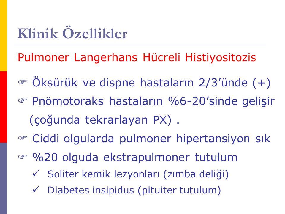 Klinik Özellikler Pulmoner Langerhans Hücreli Histiyositozis  Öksürük ve dispne hastaların 2/3'ünde (+)  Pnömotoraks hastaların %6-20'sinde gelişir