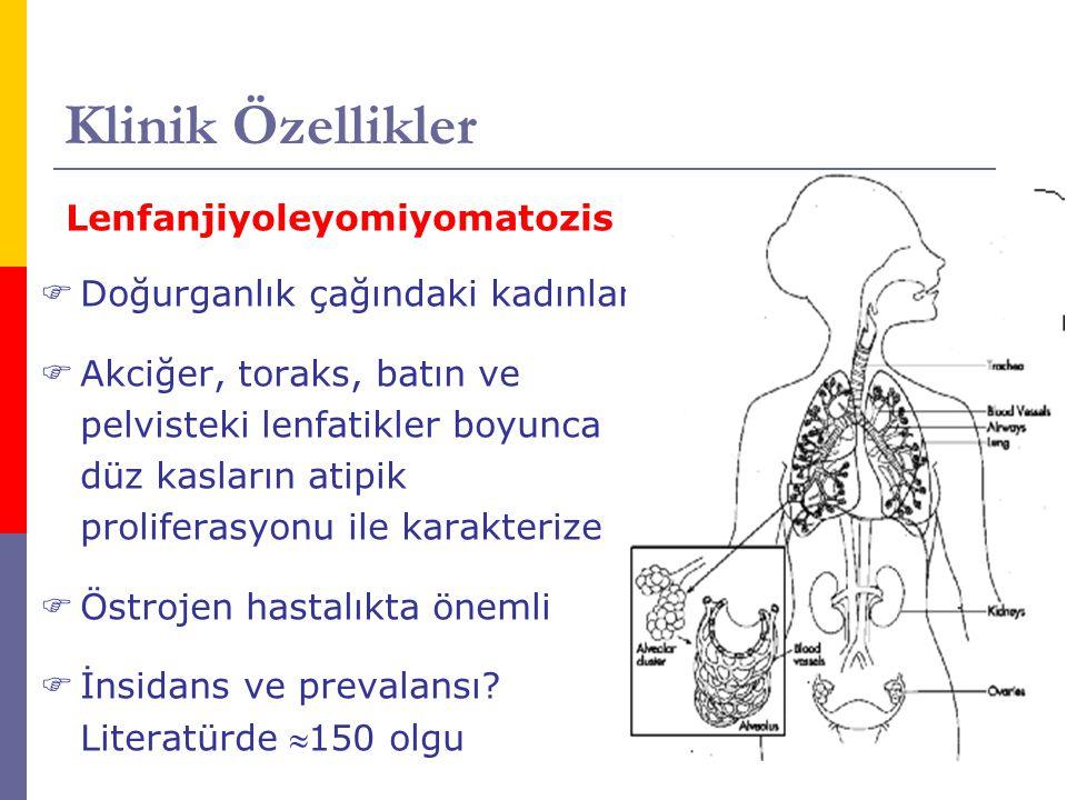 Klinik Özellikler Lenfanjiyoleyomiyomatozis  Doğurganlık çağındaki kadınlar  Akciğer, toraks, batın ve pelvisteki lenfatikler boyunca düz kasların a