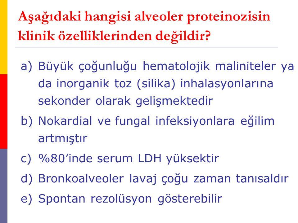 Aşağıdaki hangisi alveoler proteinozisin klinik özelliklerinden değildir? a)Büyük çoğunluğu hematolojik maliniteler ya da inorganik toz (silika) inhal