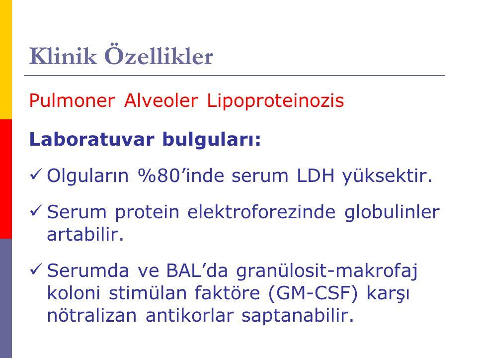 Klinik Özellikler Pulmoner Alveoler Lipoproteinozis Laboratuvar bulguları: Olguların %80'inde serum LDH yüksektir. Serum protein elektroforezinde glob