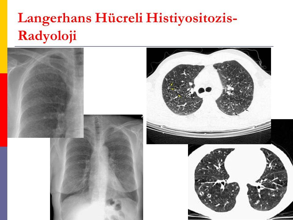 Langerhans Hücreli Histiyositozis- Radyoloji