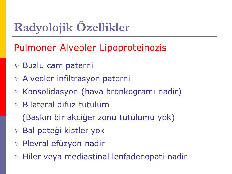 Radyolojik Özellikler Pulmoner Alveoler Lipoproteinozis  Buzlu cam paterni  Alveoler infiltrasyon paterni  Konsolidasyon (hava bronkogramı nadir) 